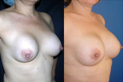 breast implants change surgery