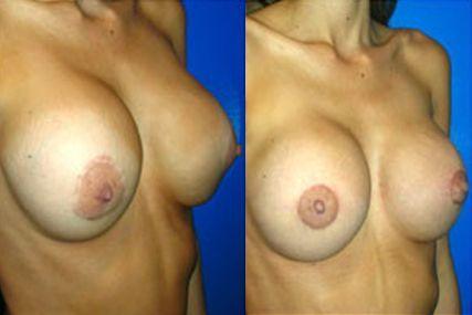 cambio de implantes pecho