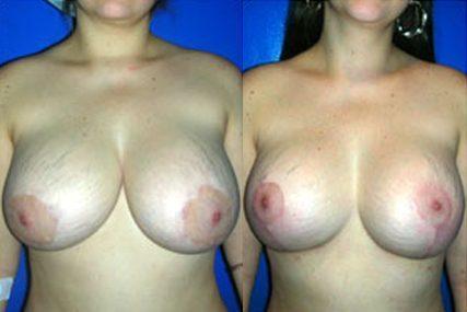 cirugía cambio de implantes senos