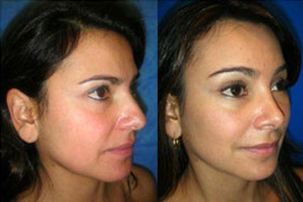 eyebrows surgery