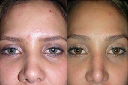 eyebrows face surgery
