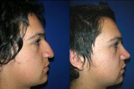 operación nariz cara