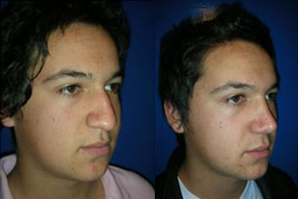 cirugía nariz cara