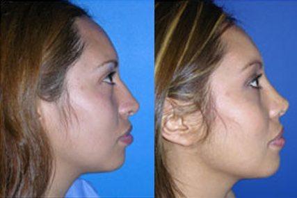 operación nasal