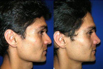 operación tabique nasal