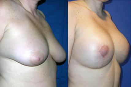 breast elevation with implants surgery