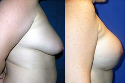 breast elevation with implants