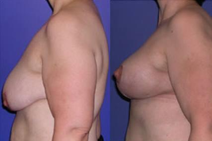 cirugía senos sin implantes