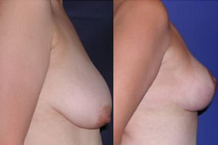 cirugía elevación de pecho sin implantes