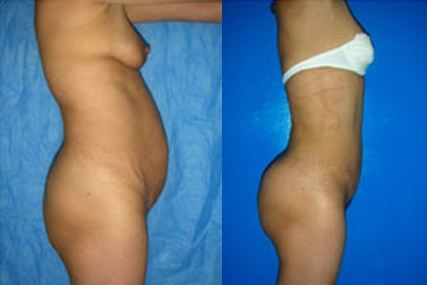 gluteous surgery