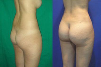 cirugía glúteos femenina