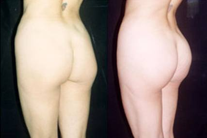 cirugía glúteos mujer