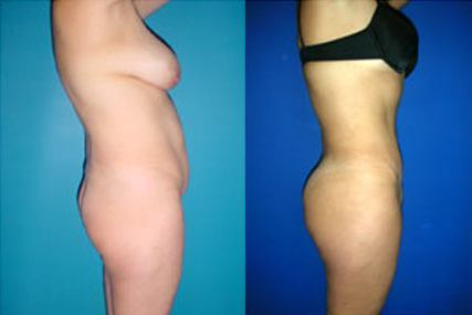 abdominal surgery woman