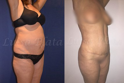 woman body surgery