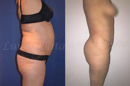 woman lipectomy surgery