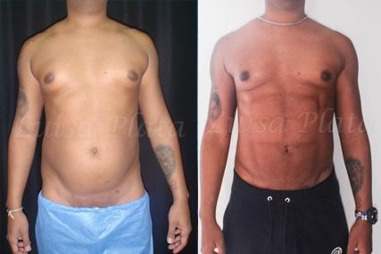 operación marcación abdominal