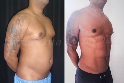 cirugía marcación abdominal