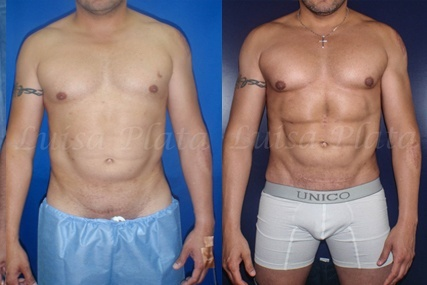 six-pack instantáneo hombre