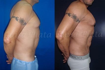 marcacion abdominal hombre