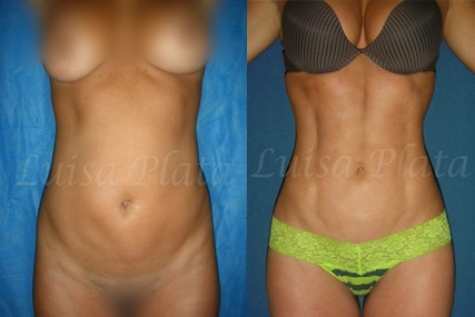six-pack mujer