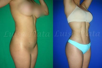 marcacion abdominal mujer