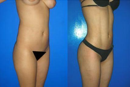 cirugía six-pack mujer