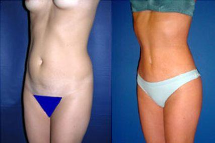 milipectomy surgery woman