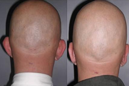 operación de orejas