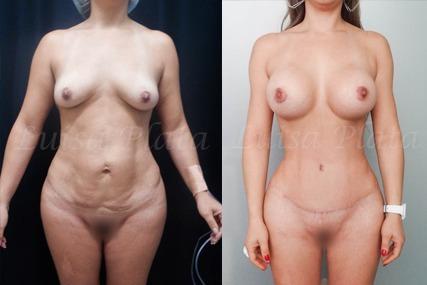 lipectomia mujer 6-1
