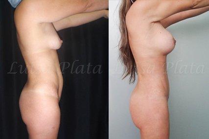 lipectomia mujer 6-2