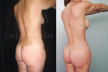 lipectomia mujer 6-4