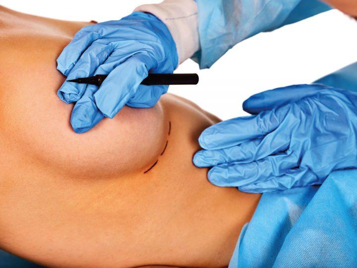 Tu cirugía plástica después del embarazo