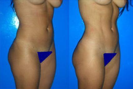 marcación abdominal mujer