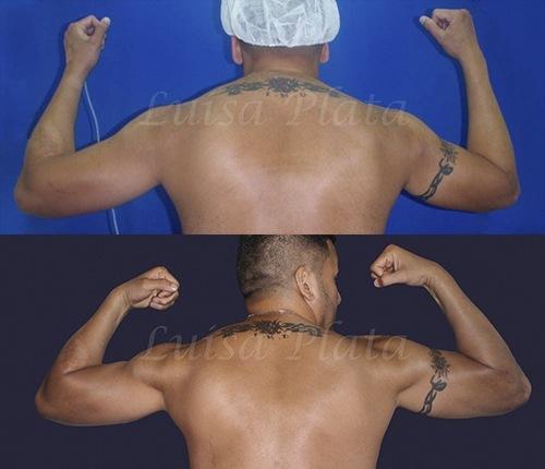 operación brazos hombre