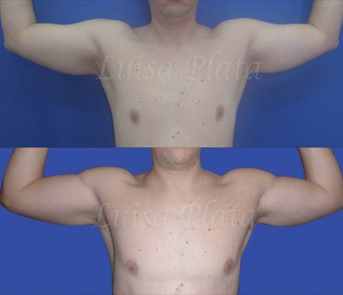 cirugía brazos hombre
