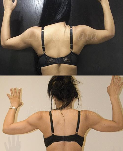 arms surgery
