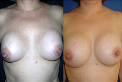 breast implants change