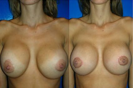 cambio de implantes senos