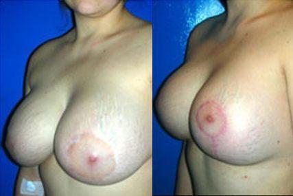 cirugía cambio de implantes pecho