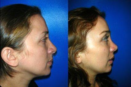 cirugía cejas