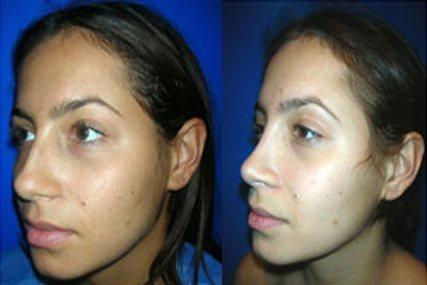 nose face surgery