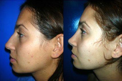 nasal facial surgery