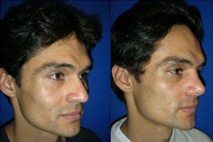 cirugía tabique nasal