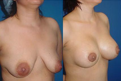 cirugía elevación de senos
