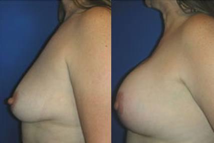 elevación de senos con implantes