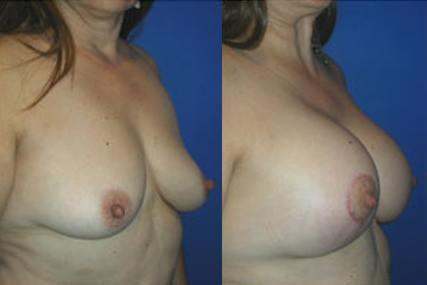 cirugía elevación de senos con implantes
