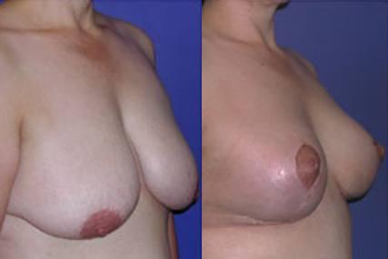 elevación pecho sin implantes