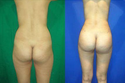 gluteus surgery
