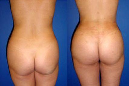 ass surgery woman