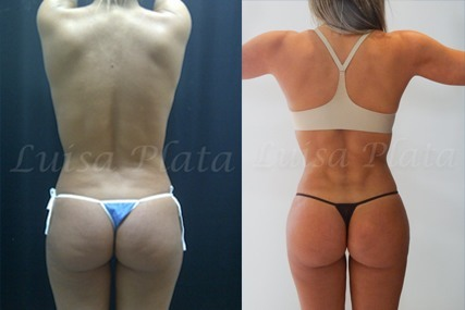 buttocks surgery